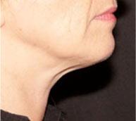 radiofréquence visage
