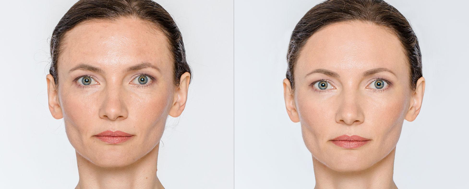 injection PRP visage